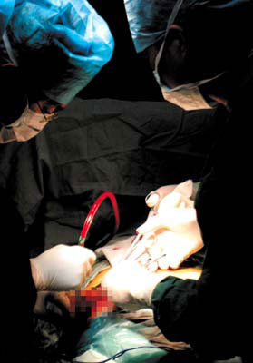 解读卫生部严限为外国人实施器官移植背后