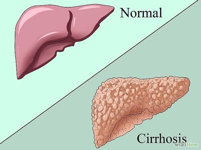 研究揭示慢性乙肝肝脏损伤新机制