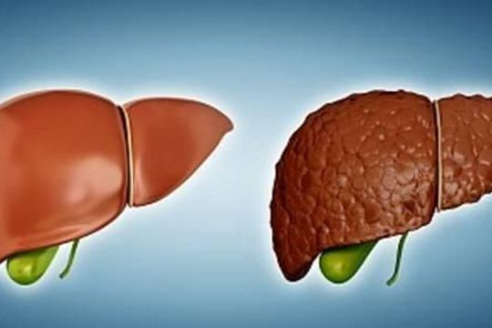 怎样预防乙肝小三阳转为肝癌?