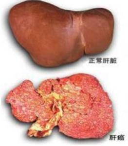 乙肝到肝癌会经历哪些过程?