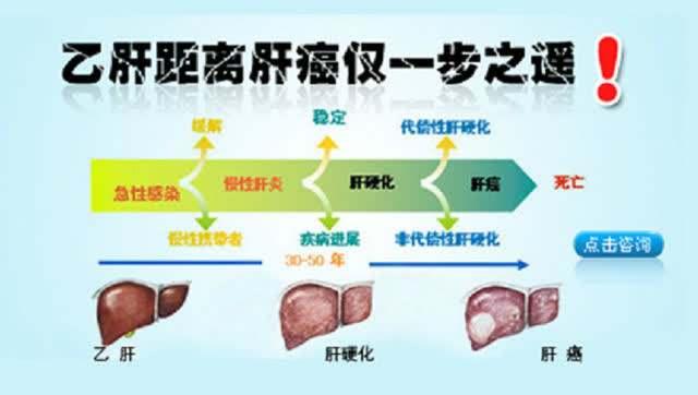 怎样防止乙肝癌变?