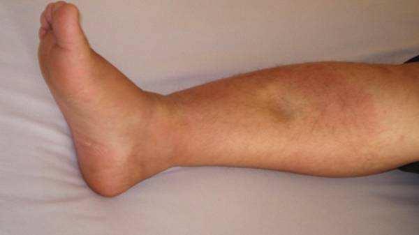 肝硬化患者出现浮肿怎么办?