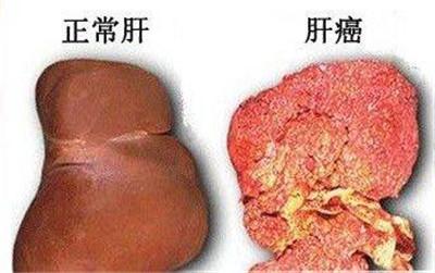 肝癌早期症状有哪些?