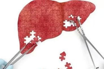 肝脏能再生,那肝硬化患者能直接切除硬化部分的肝脏吗?