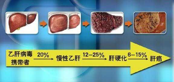 乙肝小三阳恶化几率有多大?