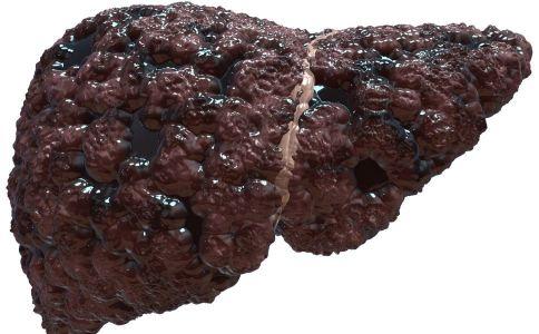哪几种病误容易认为是肝癌?