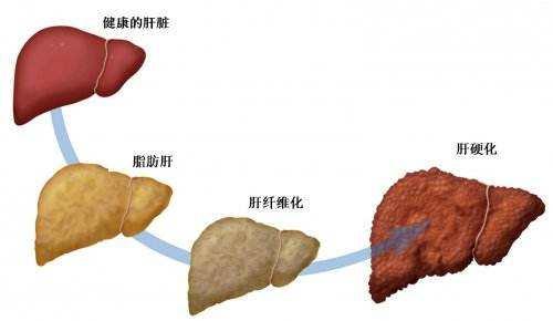 脂肪肝能自愈吗?