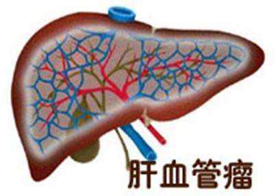 肝脏上长肿瘤是癌症吗?