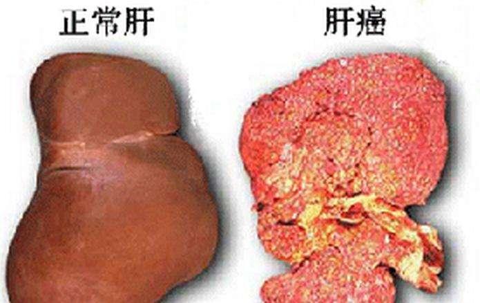 肝癌患者贫血怎么办?