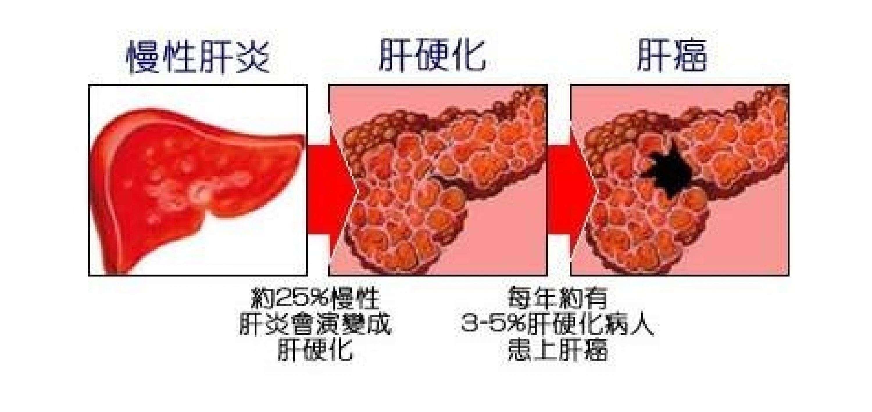 乙肝小三阳癌变的几率大吗?