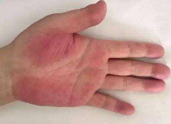 慢性乙型病毒性肝炎、病毒性肝炎指南