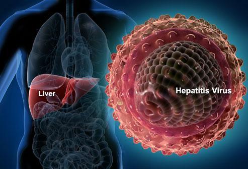 慢性乙肝为什么要抗病毒治疗?