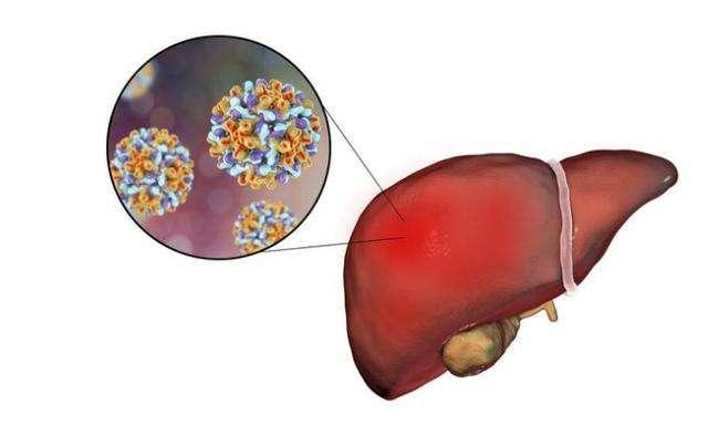 乙肝患者应该吃什么药治疗?