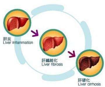 乙肝容易恶化成肝癌有哪些因素?