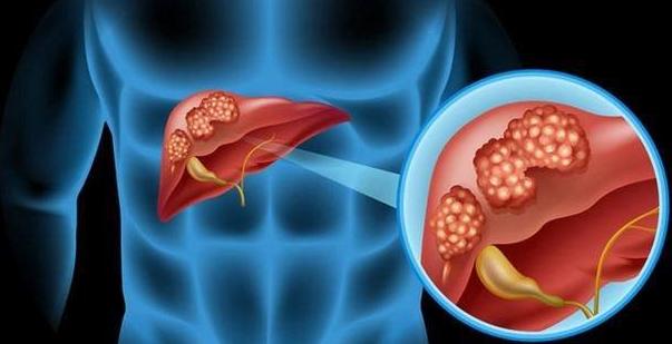 乙肝患者怎样治疗才能将得肝癌的几率降到最小?